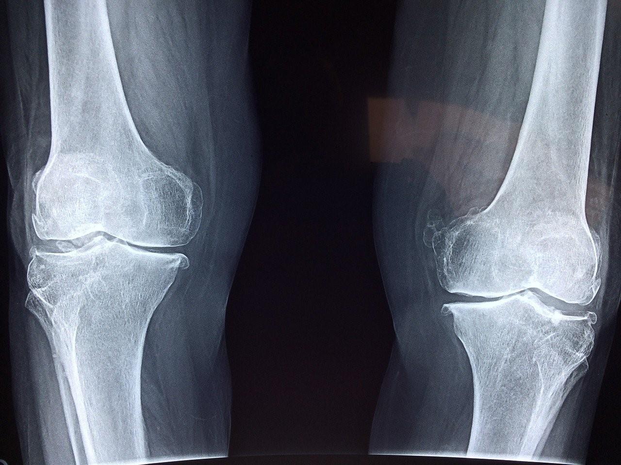 Thomas Le Carrou explique comment devenir un chirurgien orthopédique